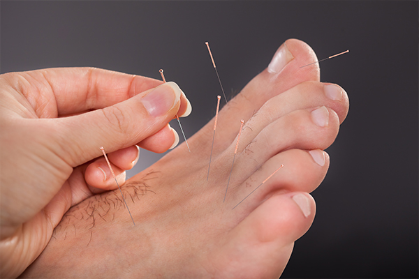 An image of a chiropodist using acupuncture on someones foot