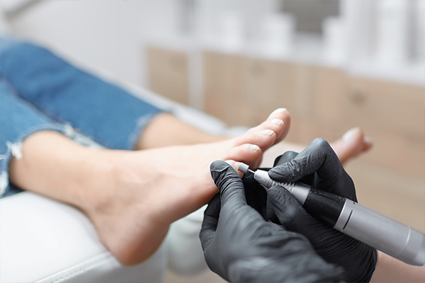 An image of a chiropodist using a tool on someones foot